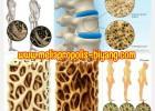 Mengenali Gejala Osteoporosis
